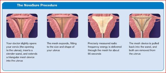 NovaSure - Shaghayegh M. DeNoble, MD, FACOG, Advanced Gynecology and Laparoscopy of North Jersey